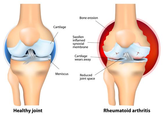 Key Points Rheumatoid Arthritis
